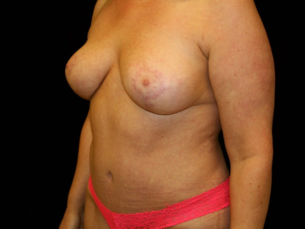 Mommy Makeover Gallery - Patient 39227043 - Image 6