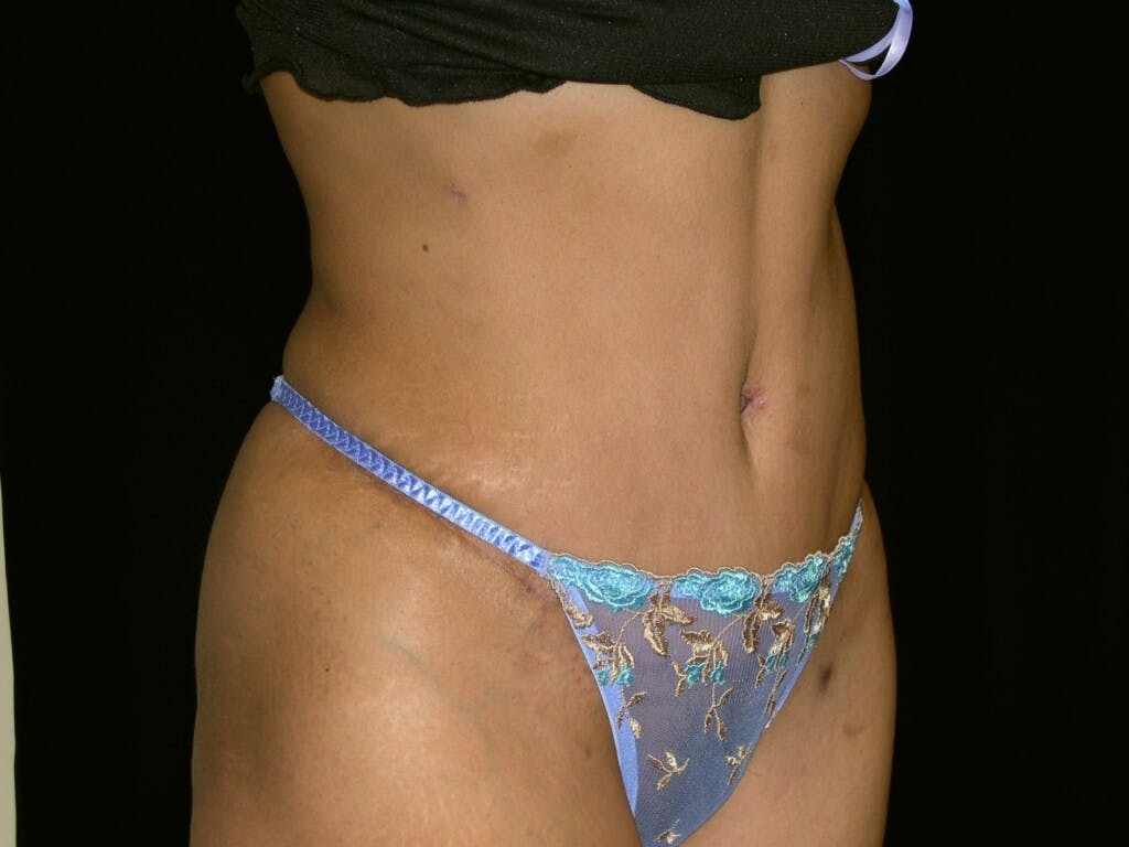 Tummy Tuck Gallery - Patient 39227045 - Image 4