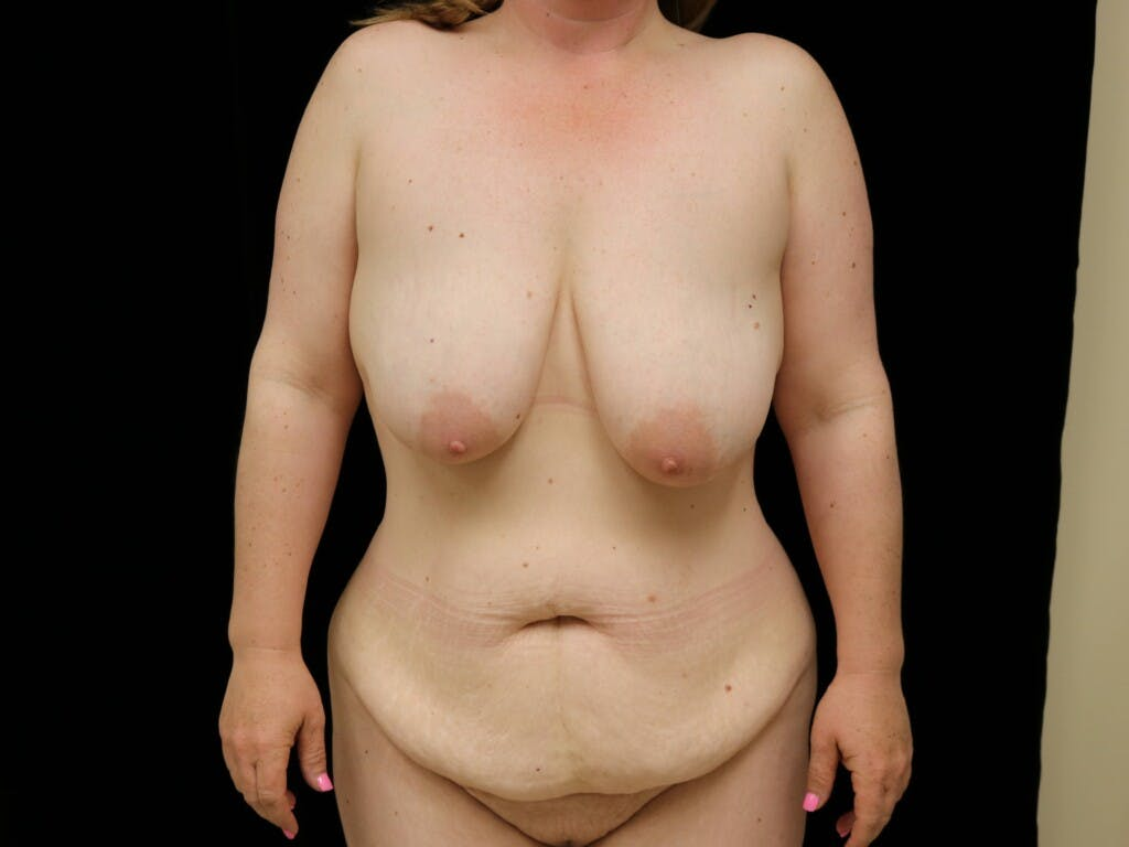 Mommy Makeover Gallery - Patient 39227048 - Image 1