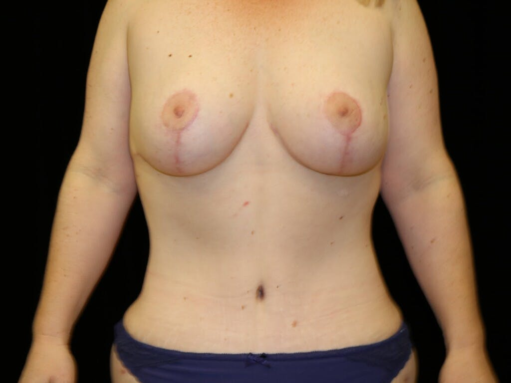 Mommy Makeover Gallery - Patient 39227048 - Image 2