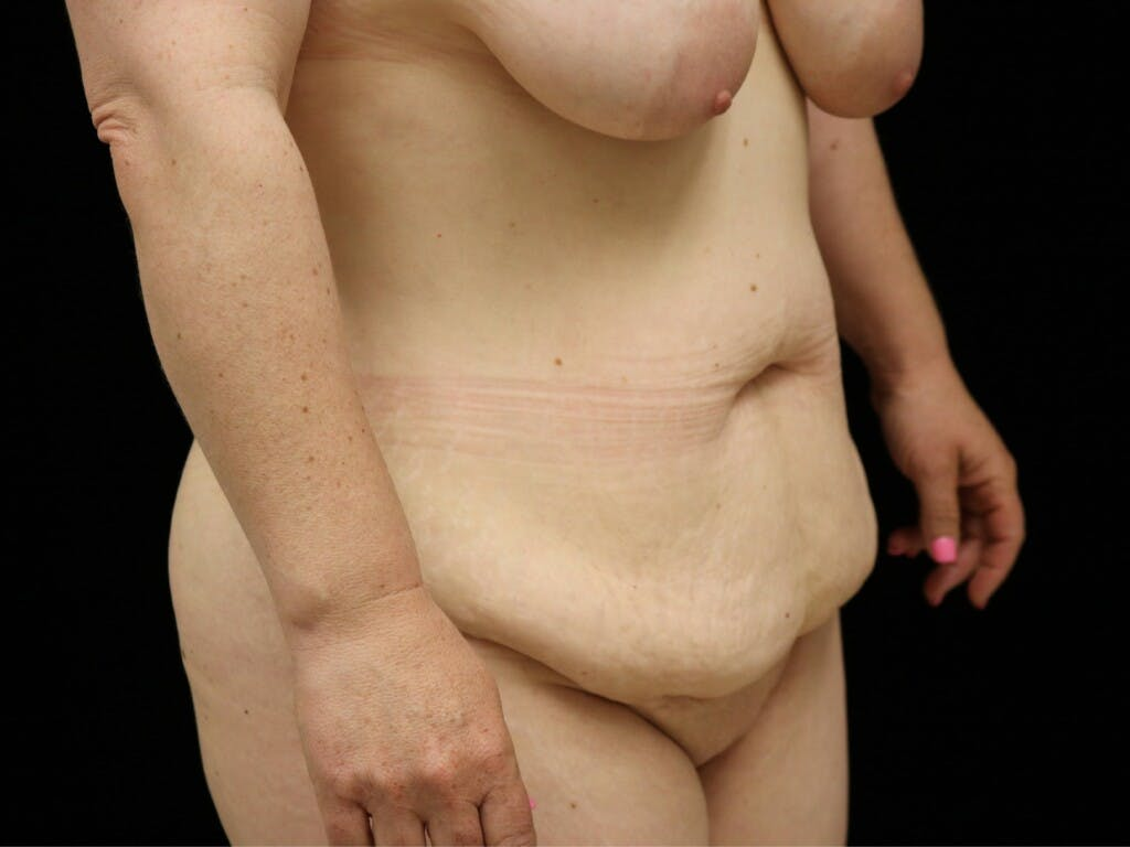 Mommy Makeover Gallery - Patient 39227048 - Image 3