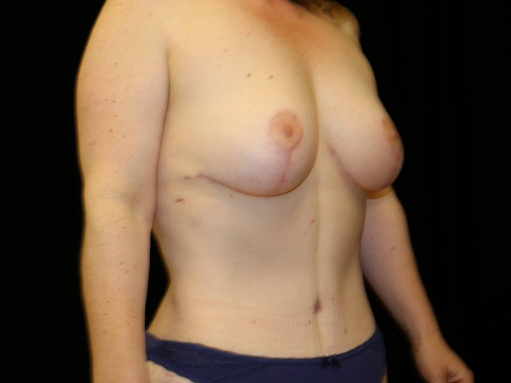 Mommy Makeover Gallery - Patient 39227048 - Image 4