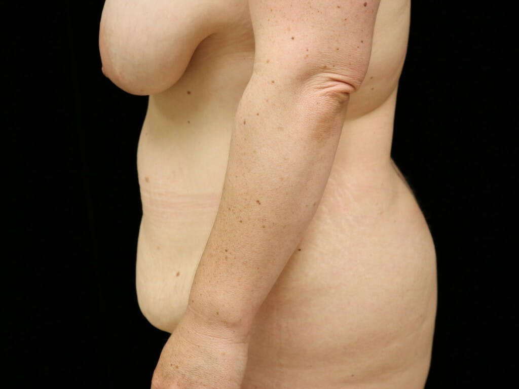 Mommy Makeover Gallery - Patient 39227048 - Image 7