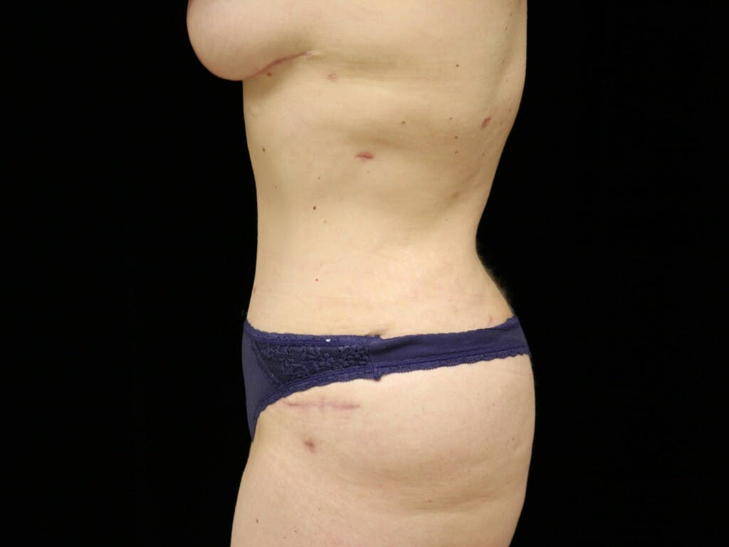 Mommy Makeover Gallery - Patient 39227048 - Image 8