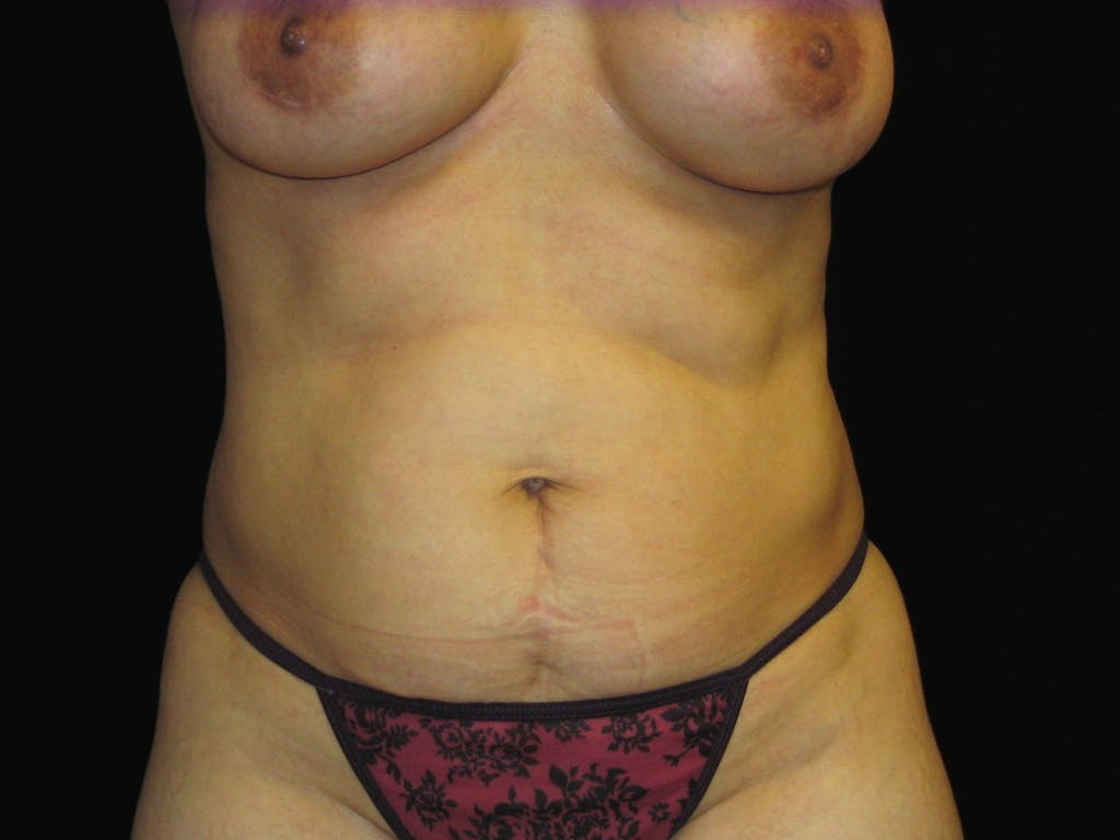 Tummy Tuck Gallery - Patient 39227059 - Image 1