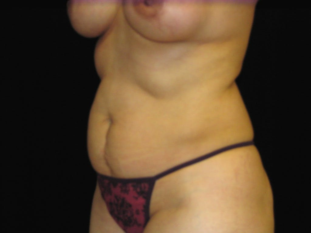 Tummy Tuck Gallery - Patient 39227059 - Image 7