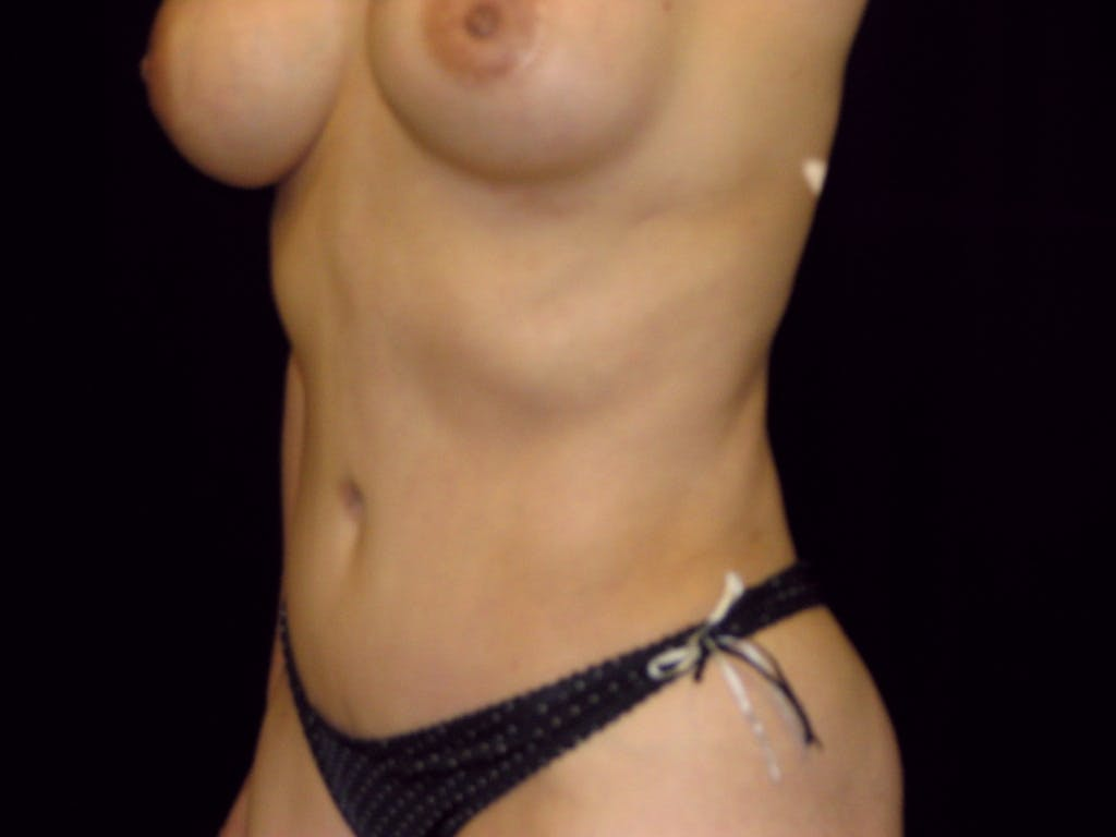 Tummy Tuck Gallery - Patient 39227059 - Image 8