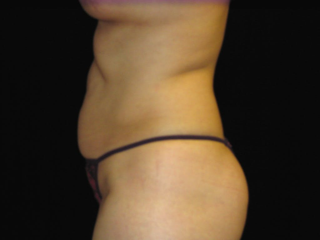 Tummy Tuck Gallery - Patient 39227059 - Image 9