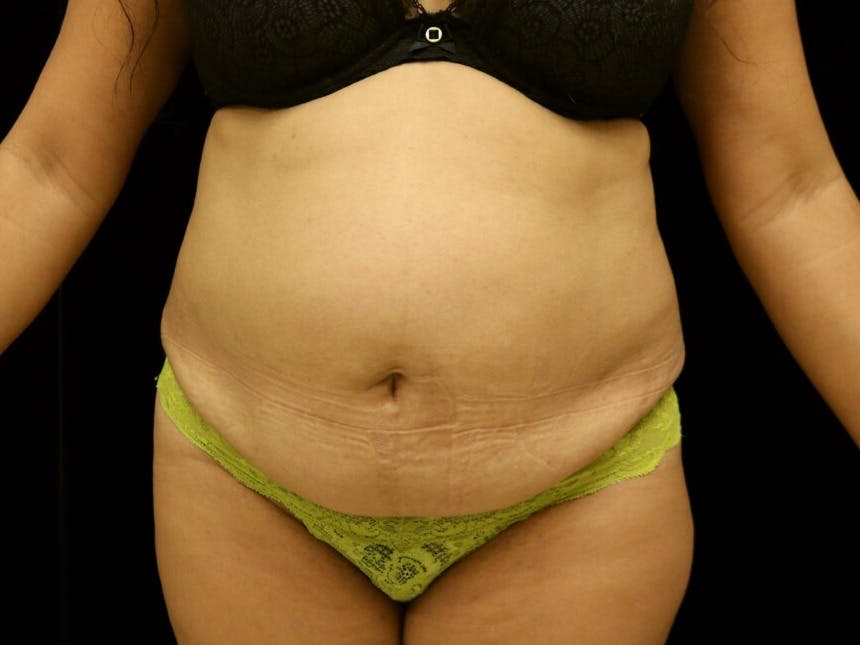 Tummy Tuck Gallery - Patient 39229770 - Image 1
