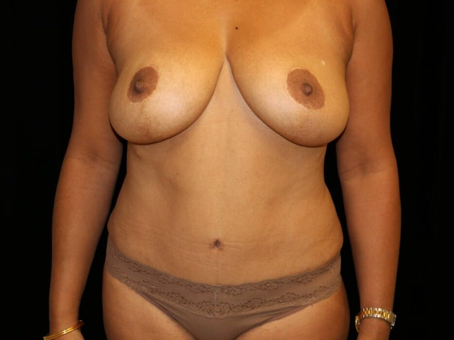 Tummy Tuck Gallery - Patient 39229770 - Image 2