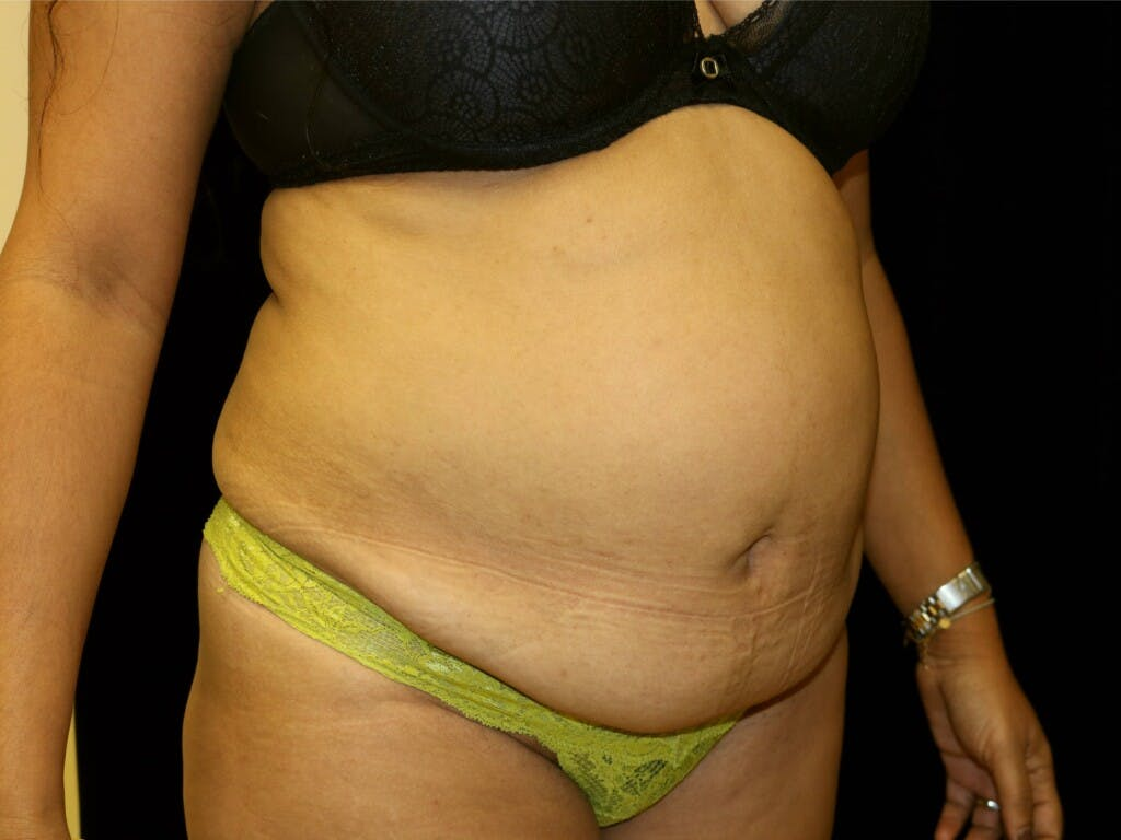 Tummy Tuck Gallery - Patient 39229770 - Image 3