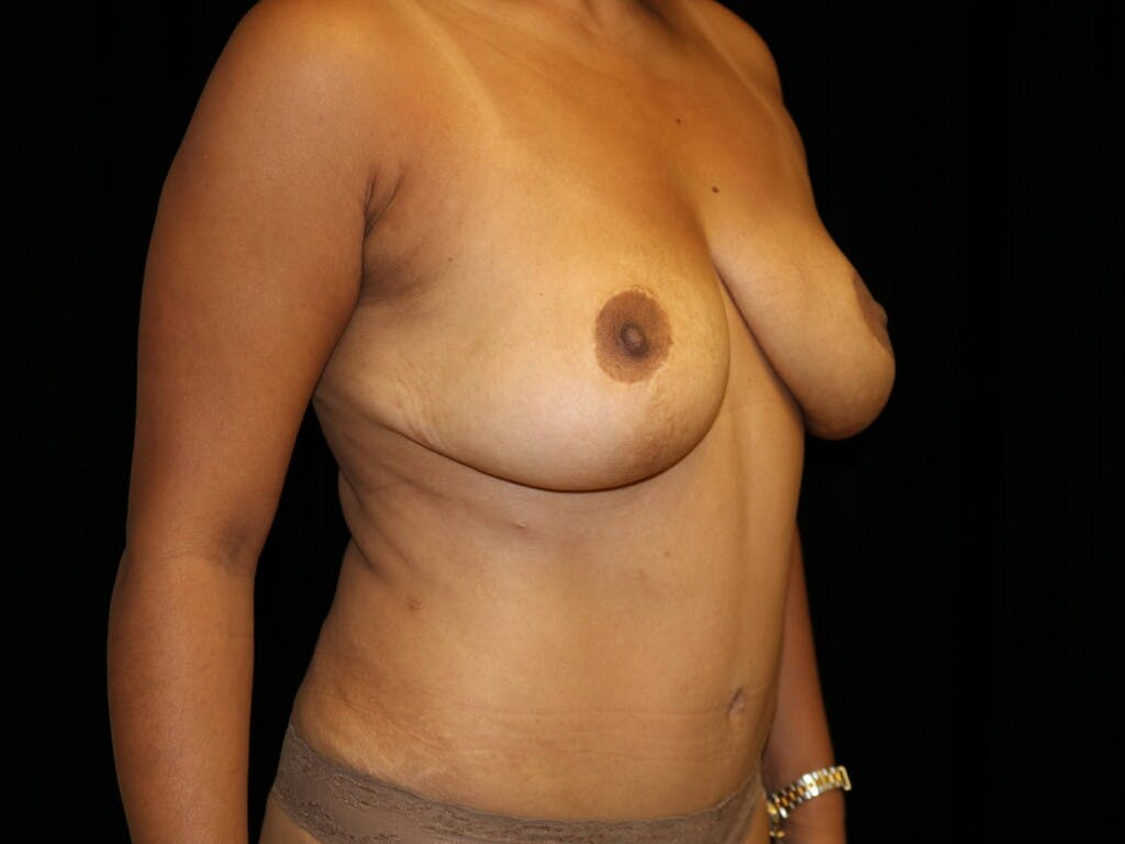 Tummy Tuck Gallery - Patient 39229770 - Image 4