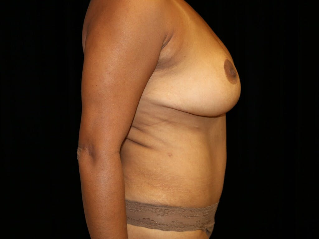 Tummy Tuck Gallery - Patient 39229770 - Image 6