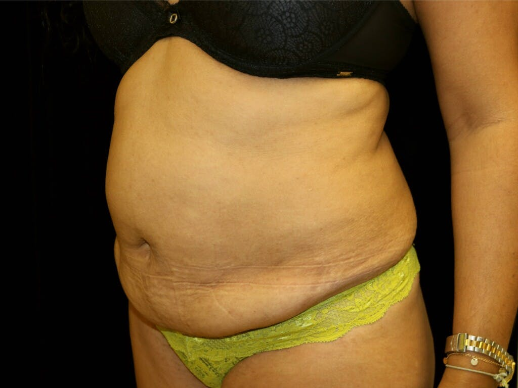 Tummy Tuck Gallery - Patient 39229770 - Image 7