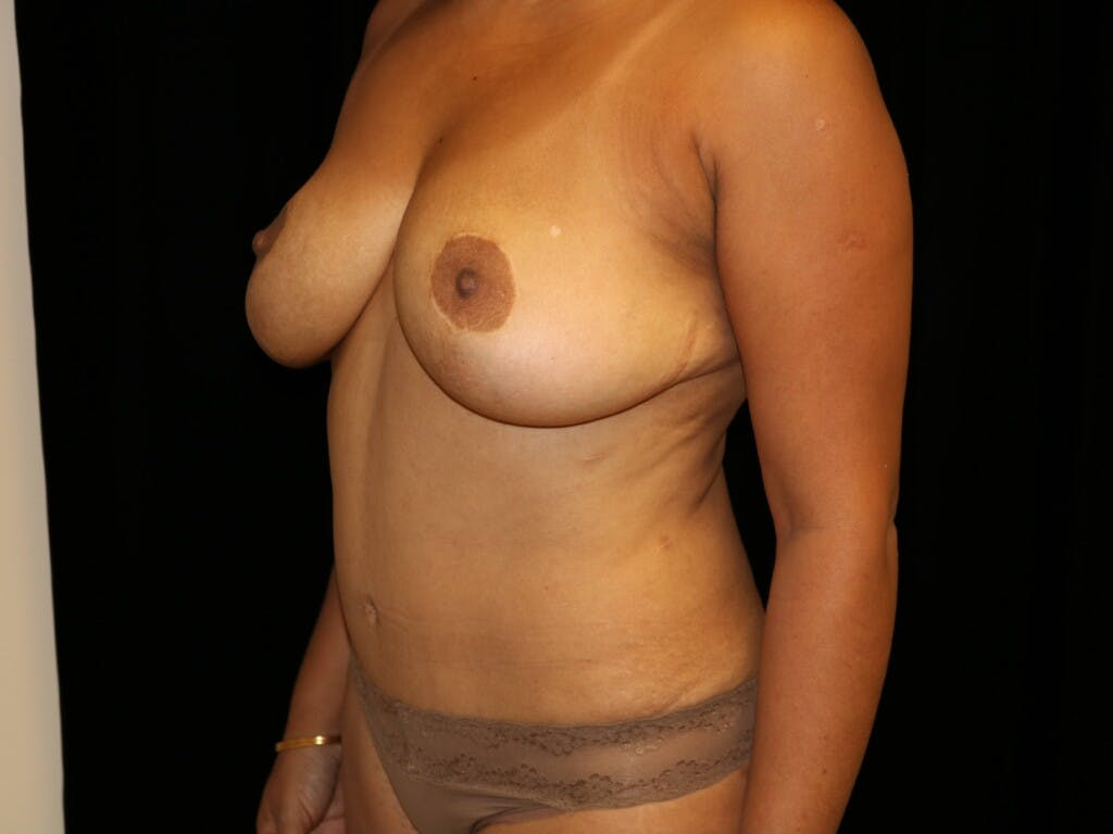 Tummy Tuck Gallery - Patient 39229770 - Image 8