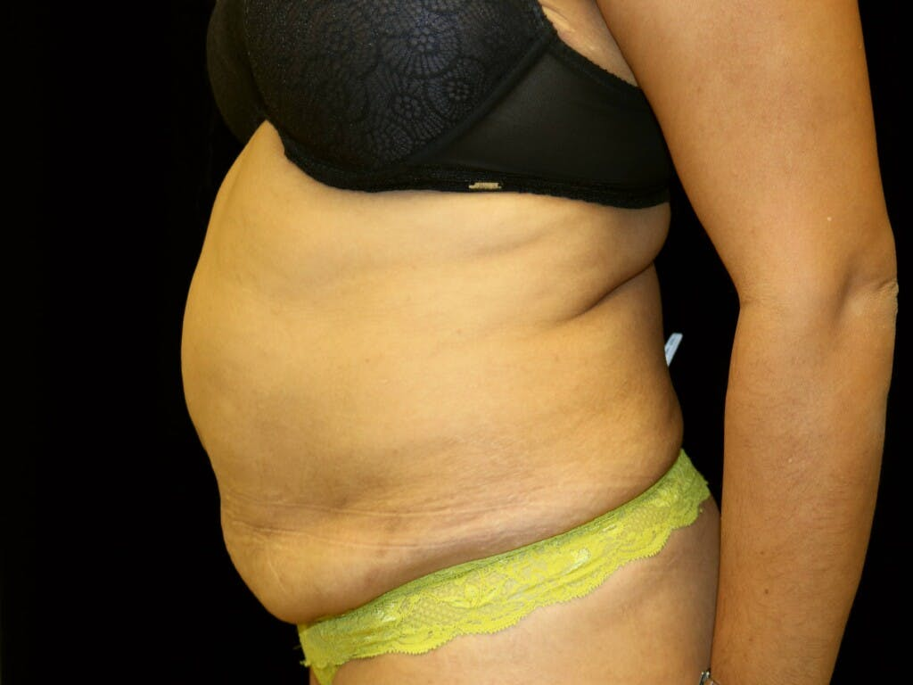 Tummy Tuck Gallery - Patient 39229770 - Image 9