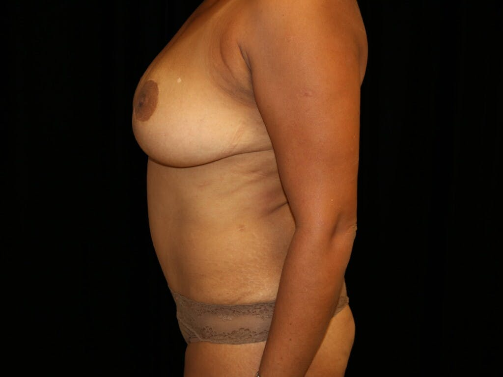 Tummy Tuck Gallery - Patient 39229770 - Image 10