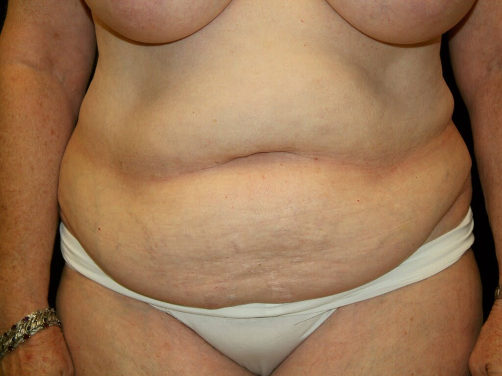 Tummy Tuck Gallery - Patient 39235535 - Image 1