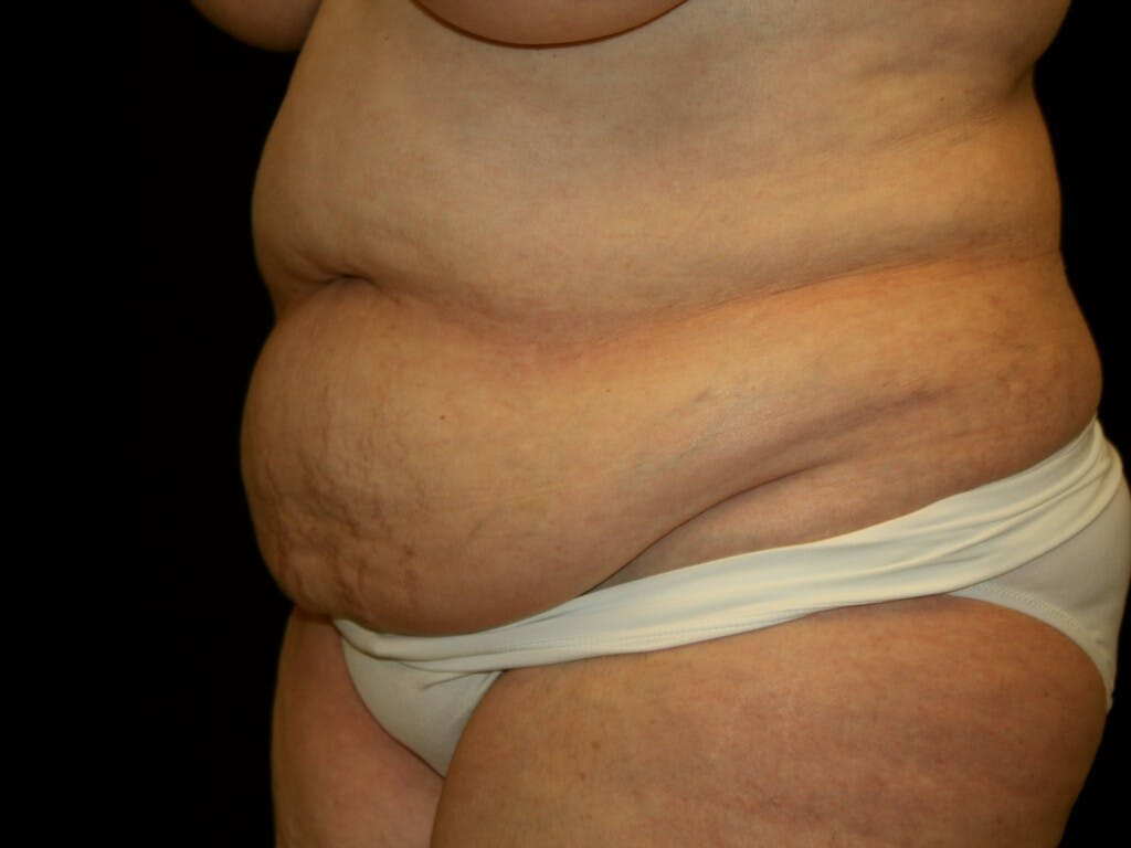 Tummy Tuck Gallery - Patient 39235535 - Image 3