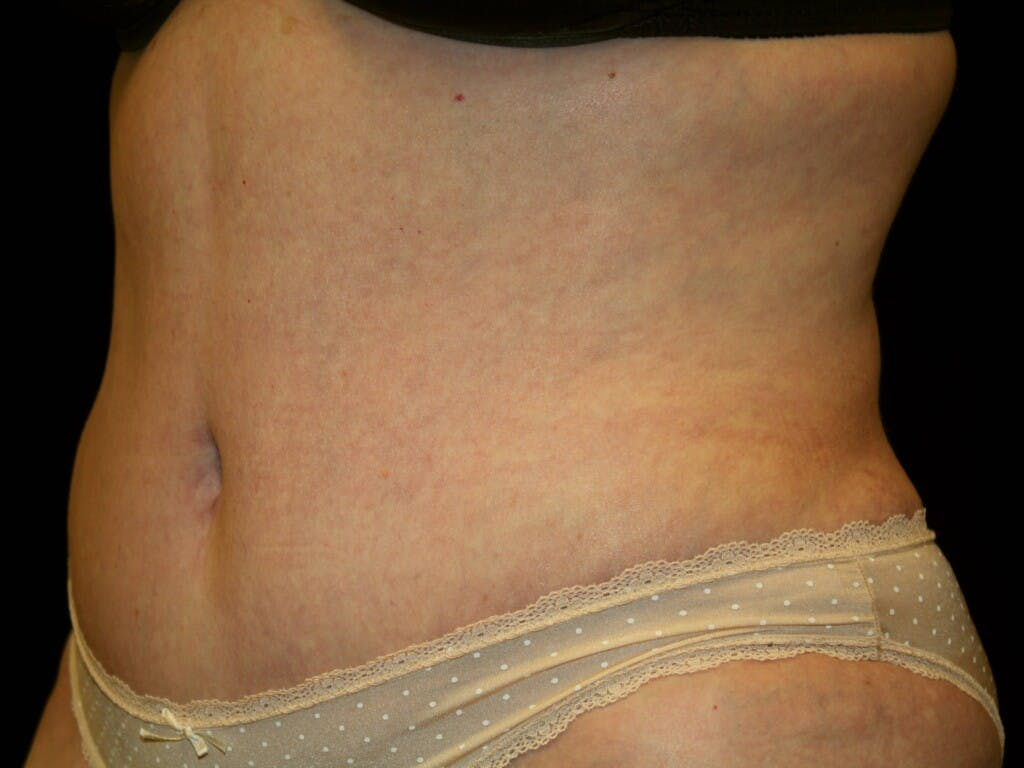 Tummy Tuck Gallery - Patient 39235535 - Image 4