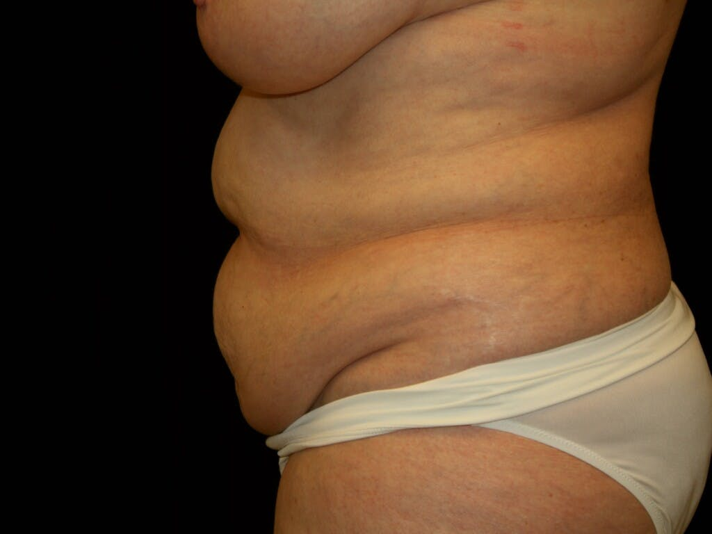 Tummy Tuck Gallery - Patient 39235535 - Image 5
