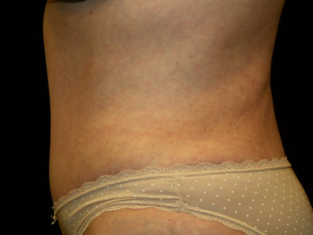 Tummy Tuck Gallery - Patient 39235535 - Image 6