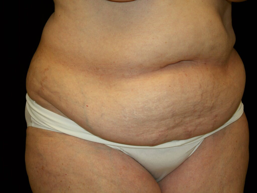 Tummy Tuck Gallery - Patient 39235535 - Image 7