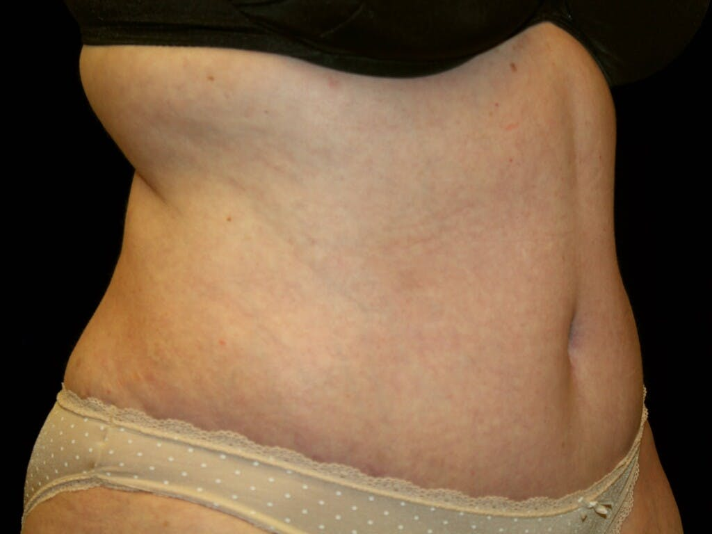 Tummy Tuck Gallery - Patient 39235535 - Image 8