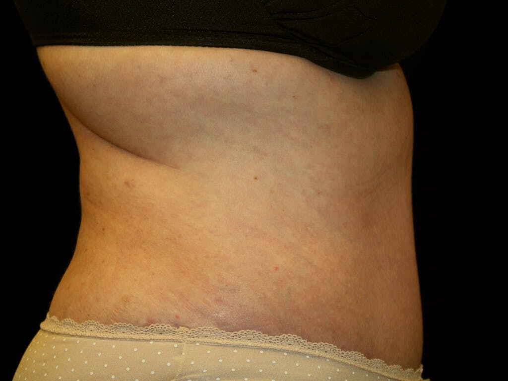 Tummy Tuck Gallery - Patient 39235535 - Image 10