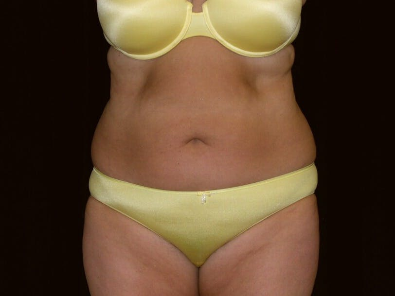 Tummy Tuck Gallery - Patient 39235541 - Image 1