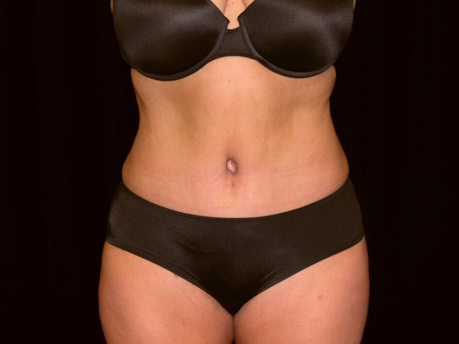 Tummy Tuck Gallery - Patient 39235541 - Image 2
