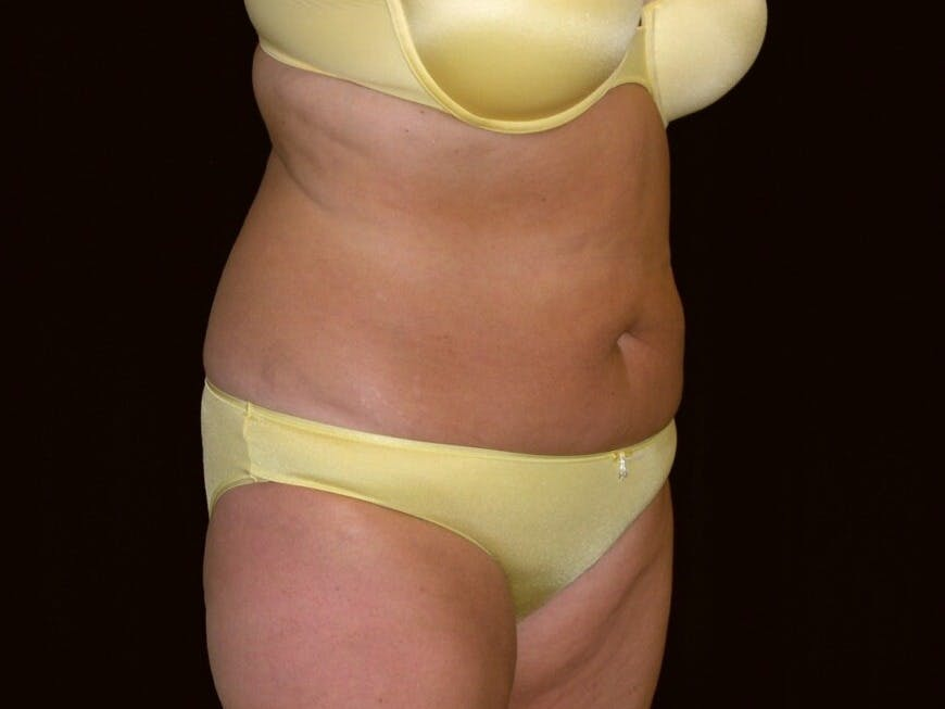 Tummy Tuck Gallery - Patient 39235541 - Image 3