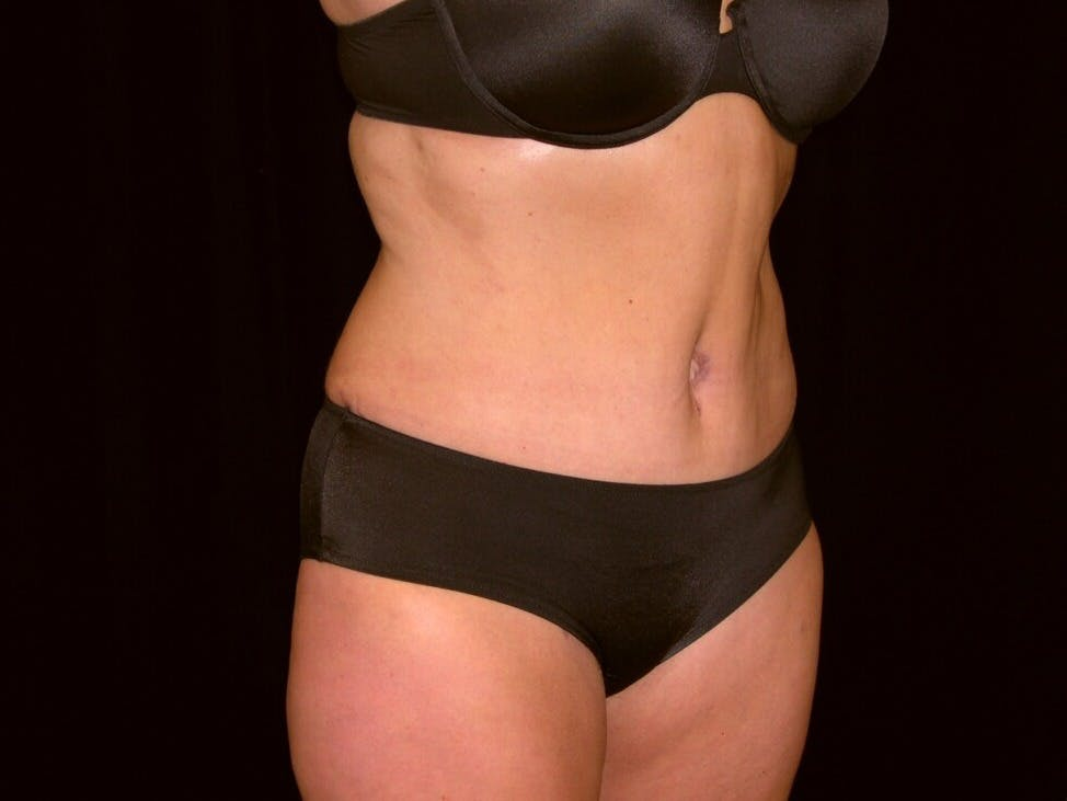 Tummy Tuck Gallery - Patient 39235541 - Image 4