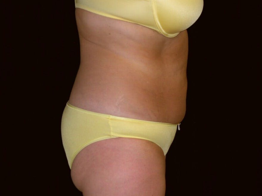 Tummy Tuck Gallery - Patient 39235541 - Image 5