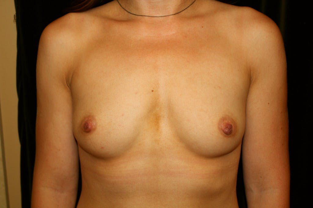 Breast Augmentation Gallery - Patient 39235542 - Image 1
