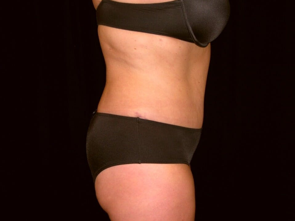 Tummy Tuck Gallery - Patient 39235541 - Image 6