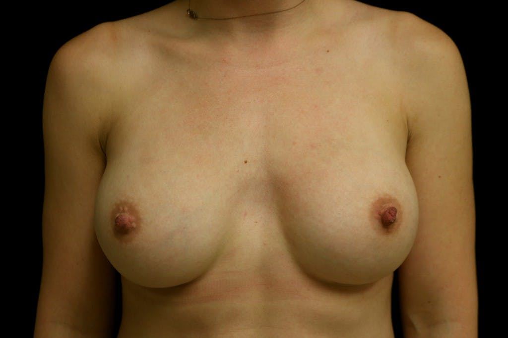 Breast Augmentation Gallery - Patient 39235542 - Image 2