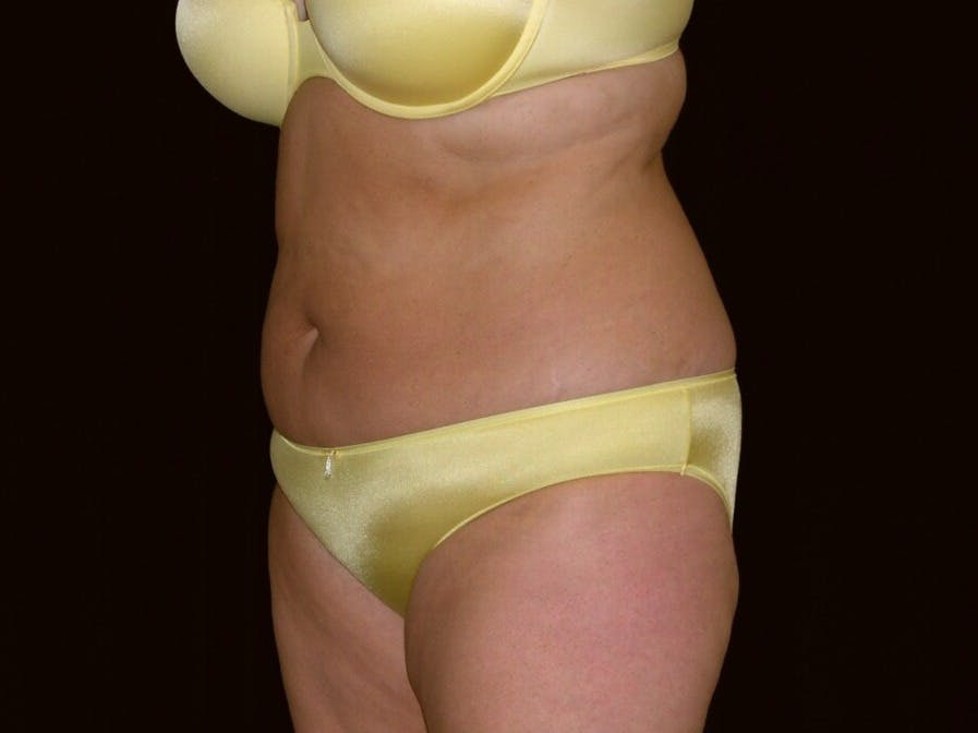 Tummy Tuck Gallery - Patient 39235541 - Image 7