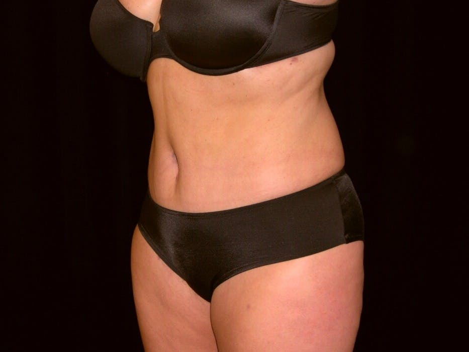 Tummy Tuck Gallery - Patient 39235541 - Image 8