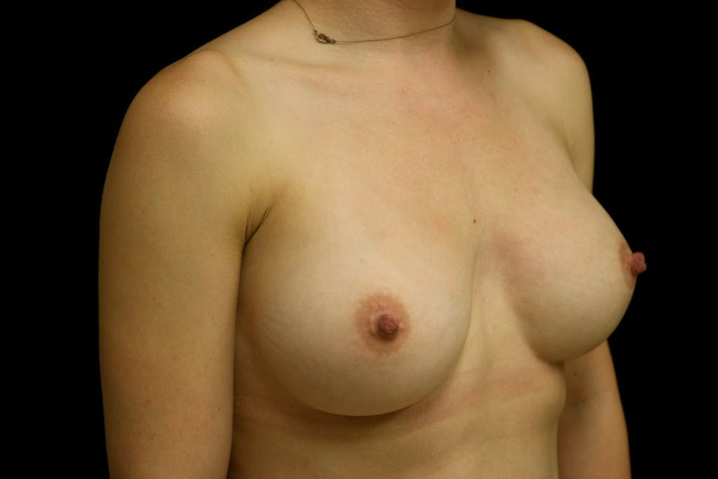 Breast Augmentation Gallery - Patient 39235542 - Image 4