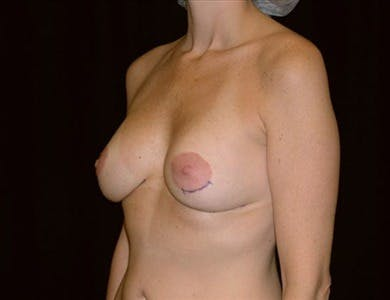 Revision Breast Surgery Gallery - Patient 39235538 - Image 1