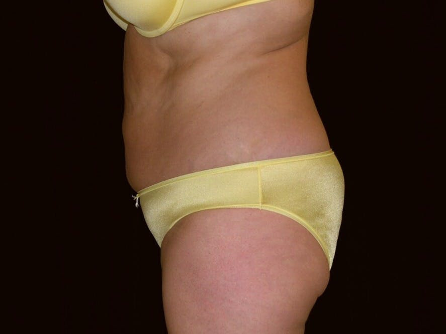 Tummy Tuck Gallery - Patient 39235541 - Image 9