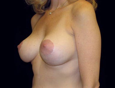 Revision Breast Surgery Gallery - Patient 39235538 - Image 2