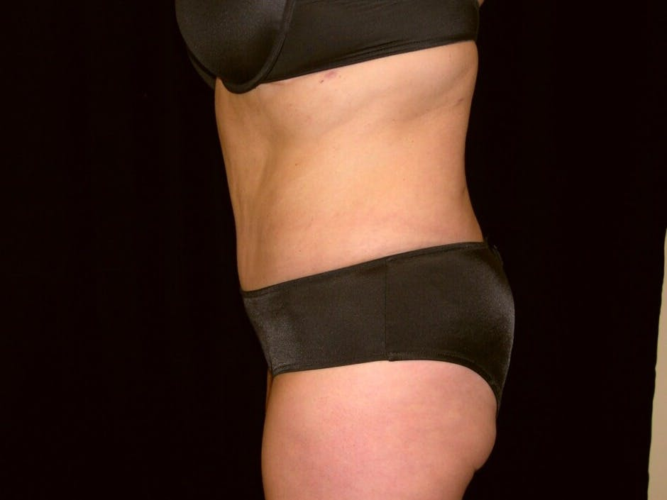 Tummy Tuck Gallery - Patient 39235541 - Image 10