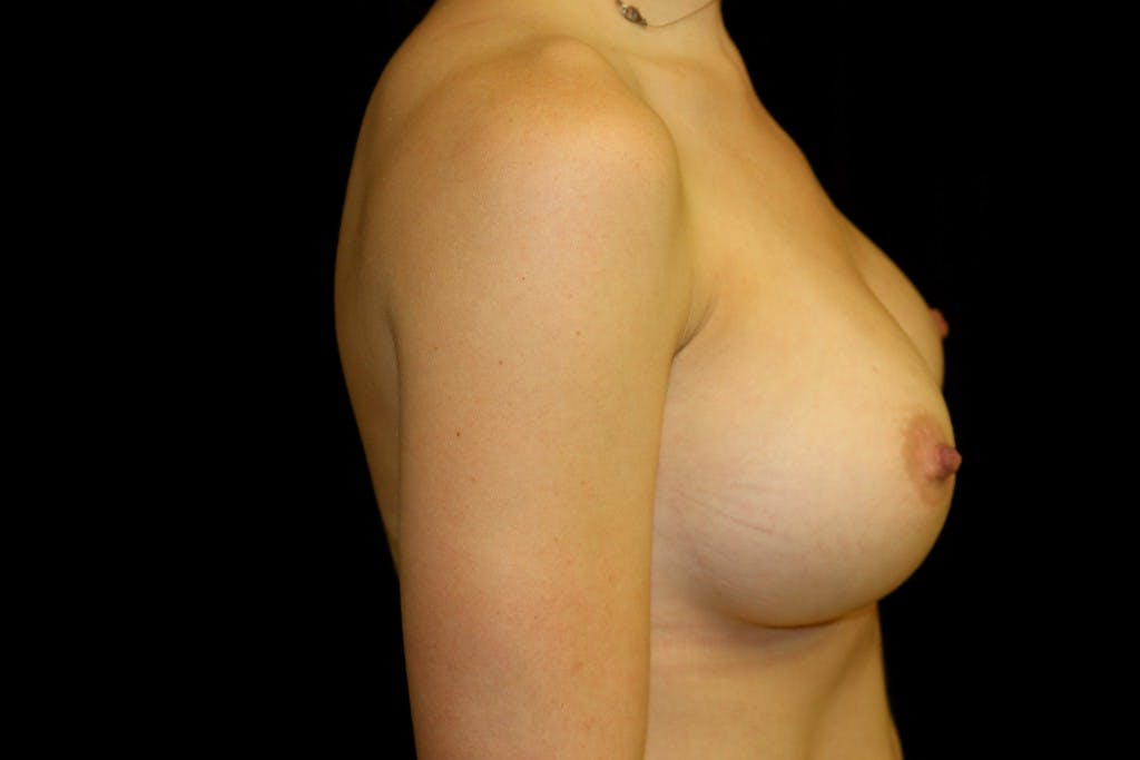 Breast Augmentation Gallery - Patient 39235542 - Image 6