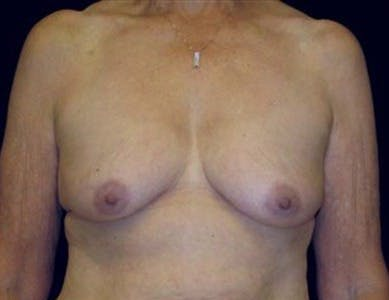 Peri-areolar Breast Lift Gallery - Patient 39235543 - Image 1