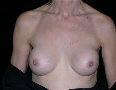 Revision Breast Surgery Gallery - Patient 39235544 - Image 1