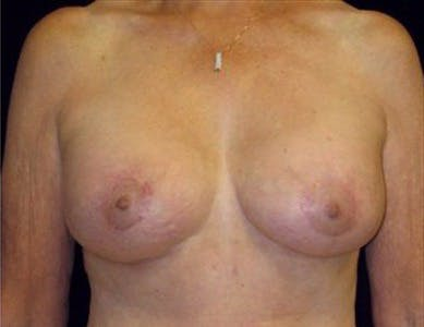 Peri-areolar Breast Lift Gallery - Patient 39235543 - Image 2