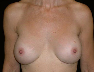 Breast Implant Revision results in San Francisco with Dr. Delgado
