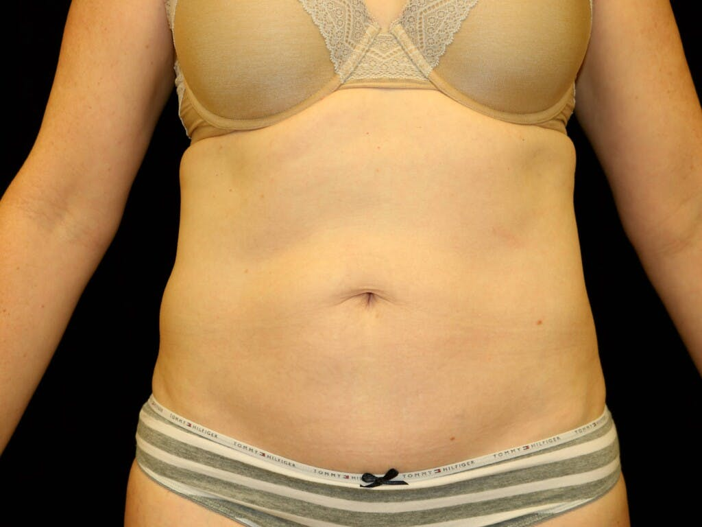 Tummy Tuck Gallery - Patient 39235555 - Image 1